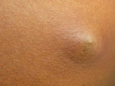sebaceous-cyst-scaled